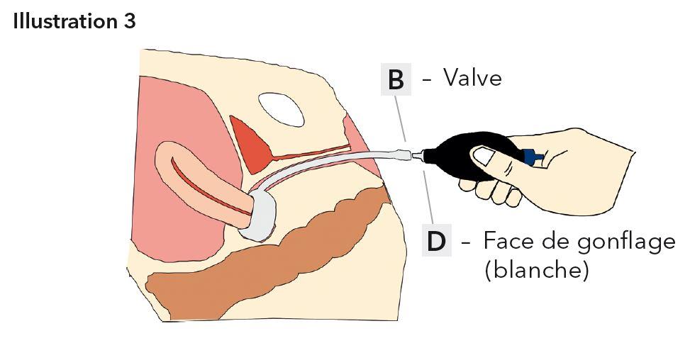 Pessaire donut gonflable en silicone pessaires for L interieur du vagin